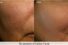 After 6 Carbon Facial Treatments