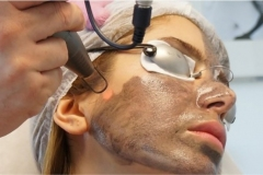 Carbon Facial Treatment