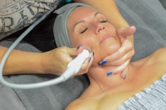 Hydrofacial Treatment