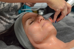 Oxygen Facial Treatment